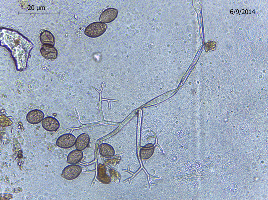 Structures of Pseudoperonospora cubensis, the oomycete that causes cucurbit downy mildew. Observed at 100x using a compound microscope (Emma Wallace, NCSU Vegetable Pathology Lab)