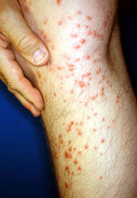 Fire ant stings on the leg of person who stepped on a fire ant mound