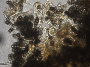 dark, multicelled spores of Thielaviopsis basicola, highly magnified